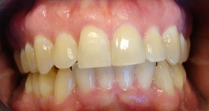 Todd finish invisalign