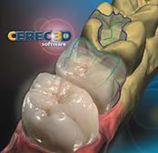 Glen Burnie CEREC Crowns