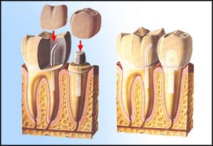 Columbia Implant Dentist