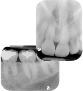 Columbia Teeth X Rays