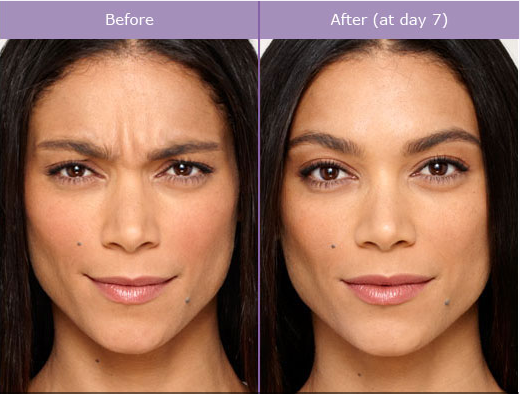 Botox And Juvederm Maryland Family Dentistry