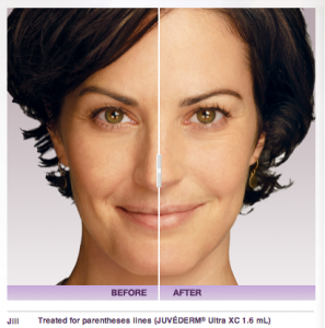 Glenn Burnie Juvederm treatment