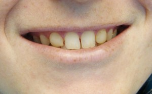 Glen Burnie Before and after Veneers